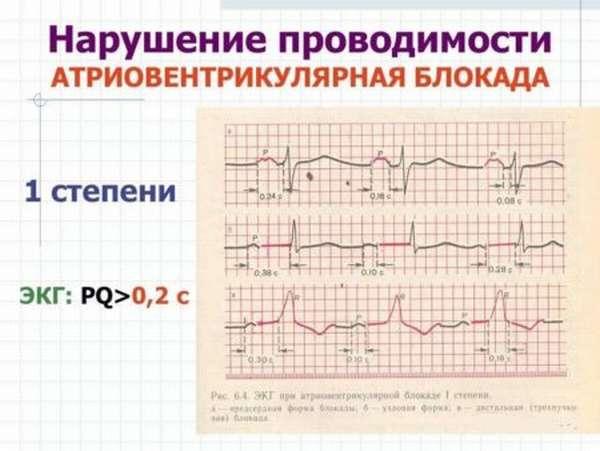 Определение замедления внутрипредсердной проводимости, факторы, признаки и лечение патологии