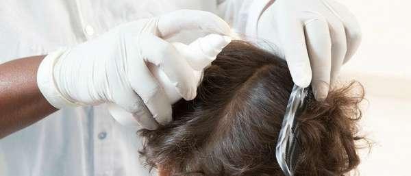 Обработка волос на голове