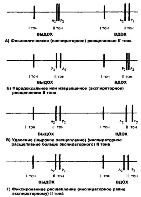 Кому назначают фонокардиографию, и какие патологии она помогает обнаружить?