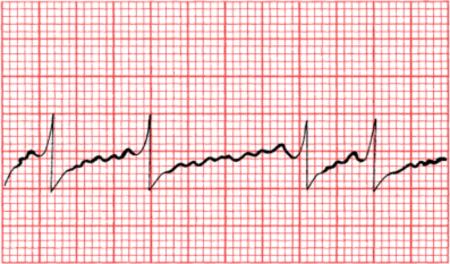 Причины внезапной сердечной смерти и оказание первой медицинской помощи