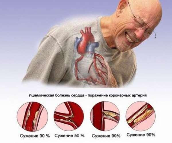 Чем проявляется, как диагностировать и лечить ишемическую болезнь сердца