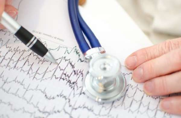 Особенности ЭКГ как метода обследования, показания и виды процедуры