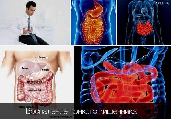Симптомы и признаки заболеваний тонкого кишечника. Диагностика патологии