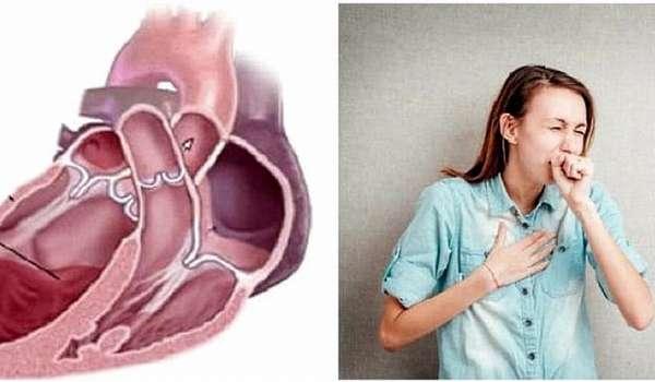 Откуда берется сердечный кашель
