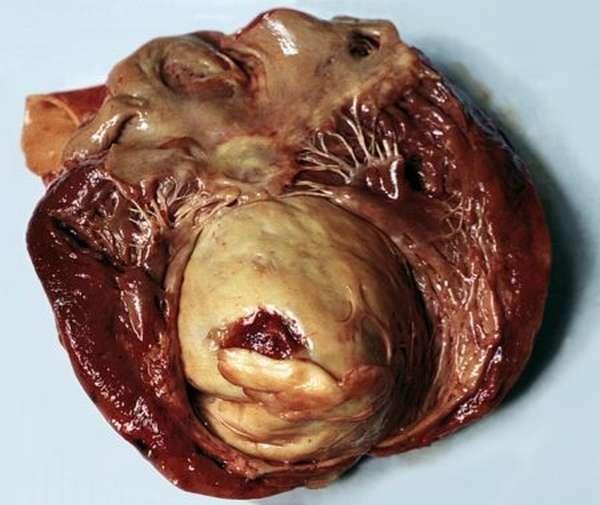 Развитие аневризмы сердца после инфаркта, прогнозы и рекомендации врачей