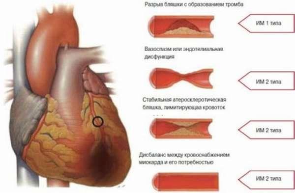 Как выполнить расшифровку данных с ЭКГ при признаках инфаркта миокарда?