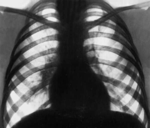 Патология контуров сердца при митральной конфигурации, способы диагностики