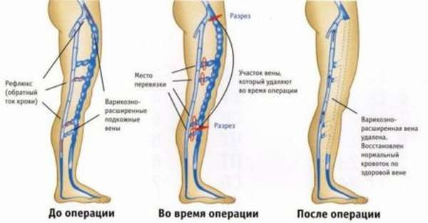 Причины появления тромбоза артерий нижних конечностей, почему происходит тромбирование вен