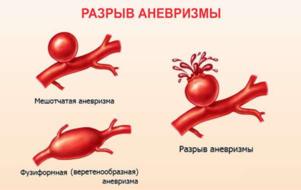 Причины развития аневризмы на стенках сосудов сердца, профилактика патологии