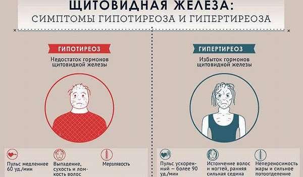 Симптомы дефицита гормонов щитовидной железы