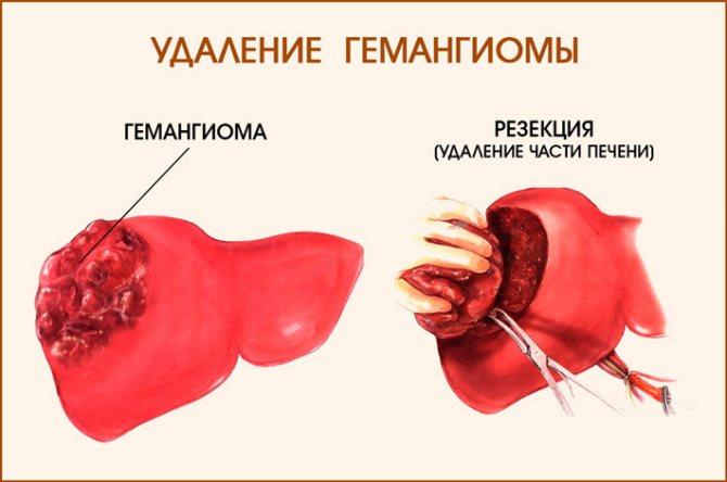 Гемангиома печени - основные способы диагностики