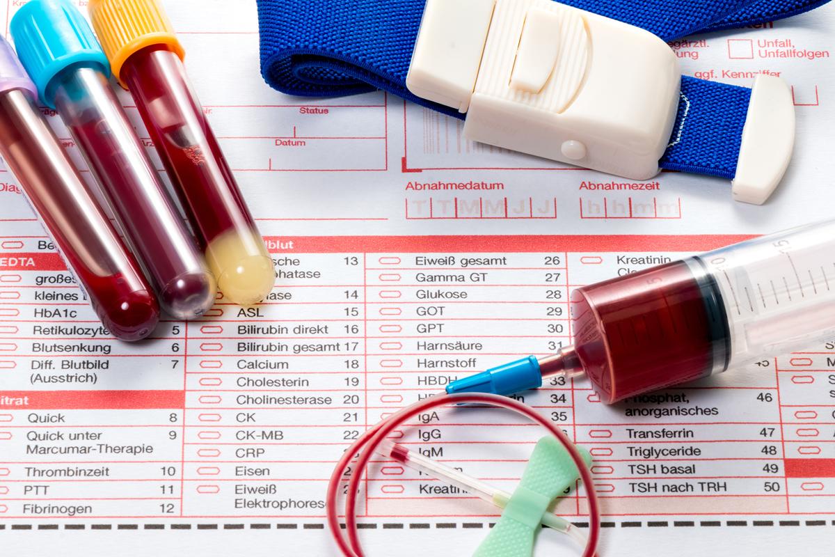 Подготовка к сдаче анализов крови