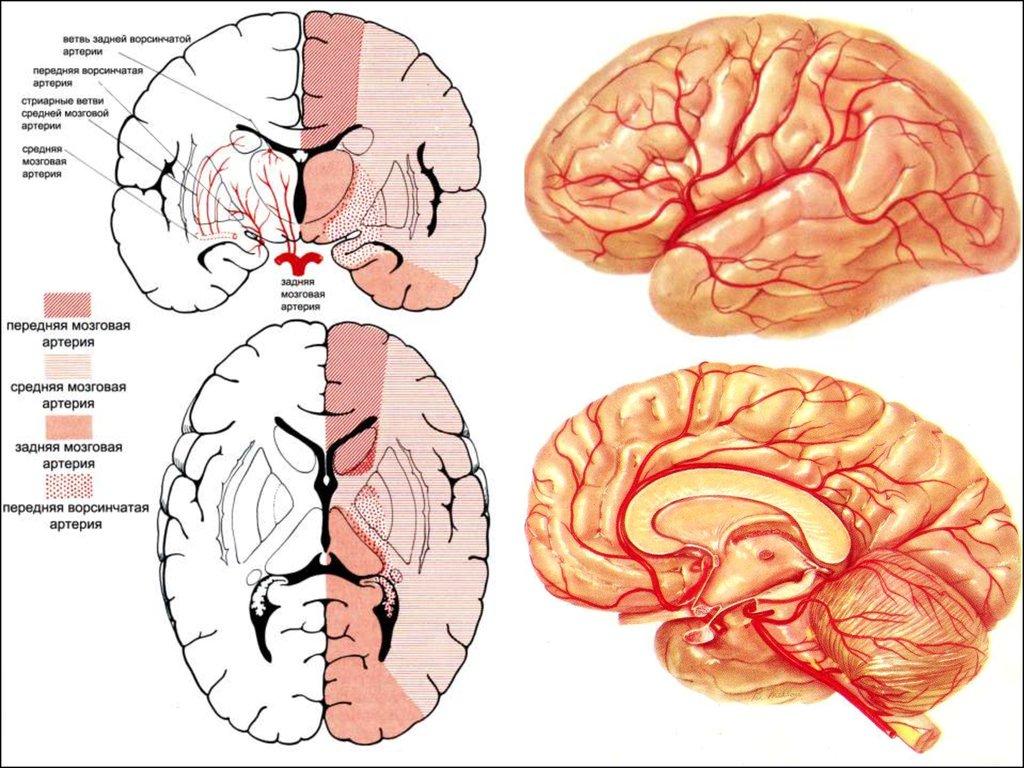 Хроническая ишемия головного мозга: диагностика, лечение